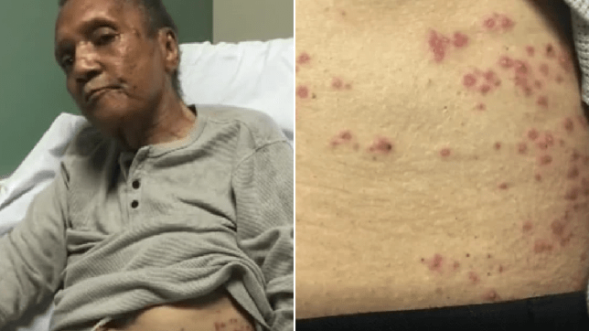 Photo of Joel Marrable in his hospital bed next to photo of ant bite injuries