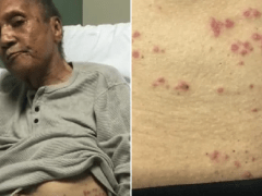 Care home staff 'let ants crawl over and bite dying war veteran 100 times'
