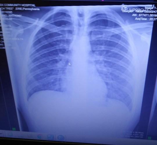 X-ray Tunjukkan Paru-paru Pengguna E-Rokok Dilapisi Minyak Mengeras