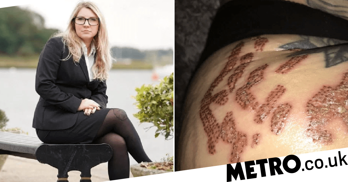Mum S Treatment To Remove Stretch Marks Leaves Her With Serious Scarring Metro News