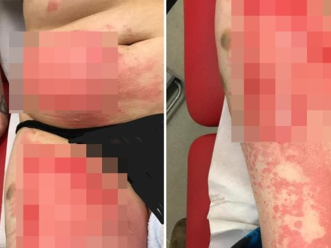Mum burned by hot water bottle that exploded after she put it down her trousers