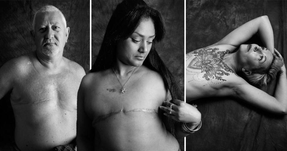Incredible photoshoot showcases the honest side of living with cancer