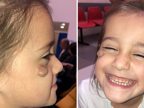 Little girl desperate for surgery to remove birthmark as other kids call her 'ugly'