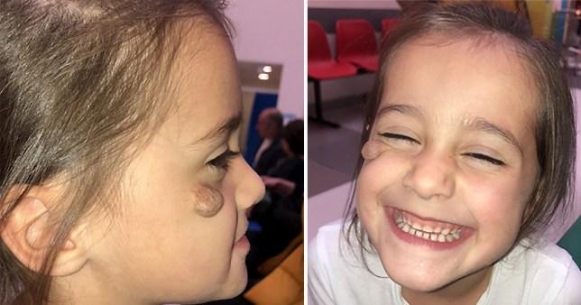 Laila and her birthmark