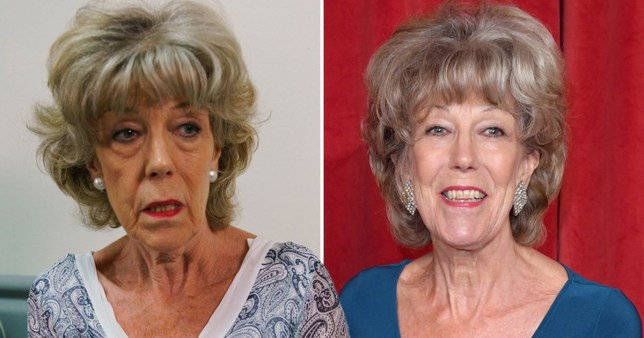 Coronation Street's Sue Nicholls written out of scenes after nasty injury and secret operation