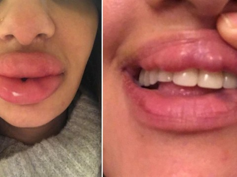 Botched lip fillers left woman with 'rock hard blue lumps' on her mouth