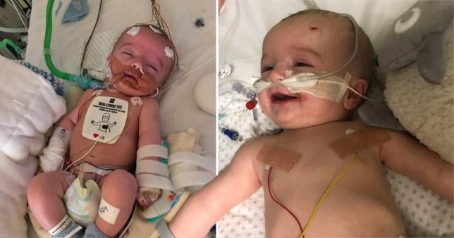 Momen Ajaib Bayi Tersenyum Pada Ayahnya Setelah Bangun dari Koma