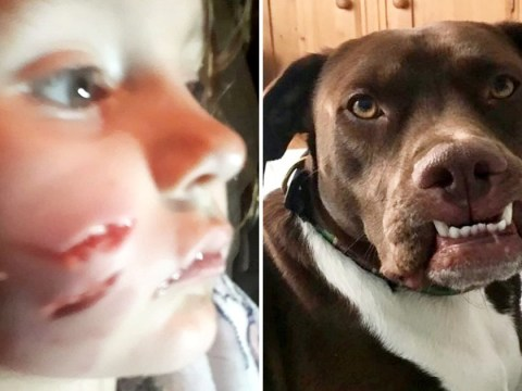 Girl, 5, has face 'ripped off' by stranger's dog on furniture shopping trip