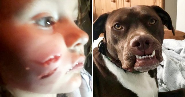 Mum's fury as pet owner is allowed to keep 'devil dog' that mauled daughter, 5