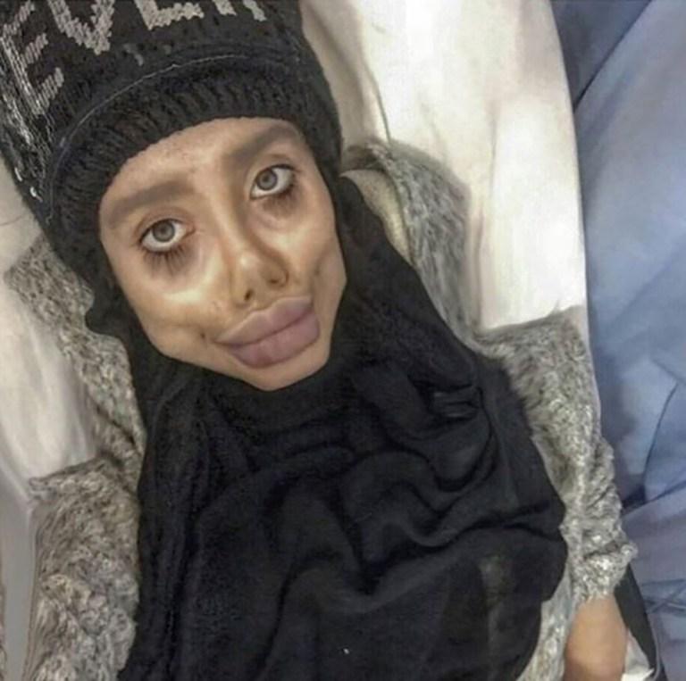 הכפילה האירנית של אנג'לינה ג'ולי נעצרה על ידי המשטר האירני בגלל הניתוחים המוגזמים