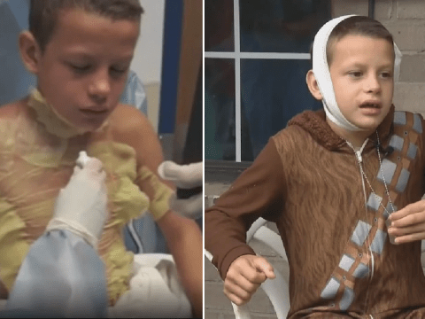 Boy, 12, was horrifically burned after school pal set him on fire for social media stunt