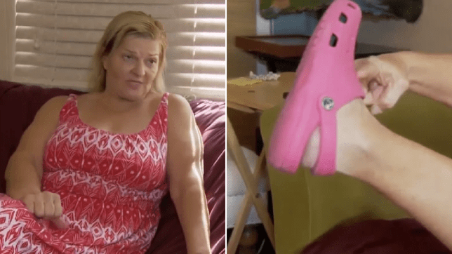 Photo of Lisa Scarborough sat on her couch next to photo of her showing Croc-covered foot which had to be partly amputated