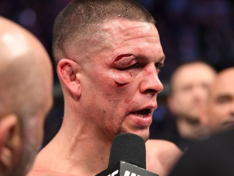 Nate Diaz disagrees with doctor's stoppage in UFC 244 clash with Jorge Masvidal