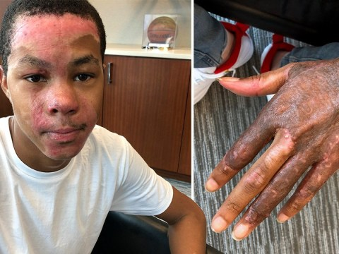 Student's face burned when teacher tried to put fire out with alcohol
