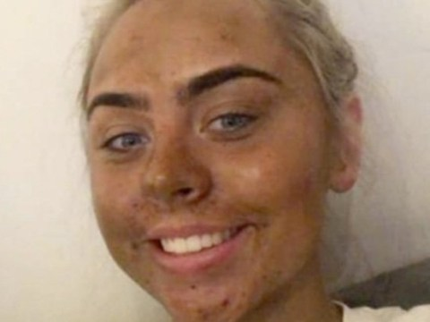 Teenager left 'looking like a Dorito' after her first attempt at using fake tan went wrong