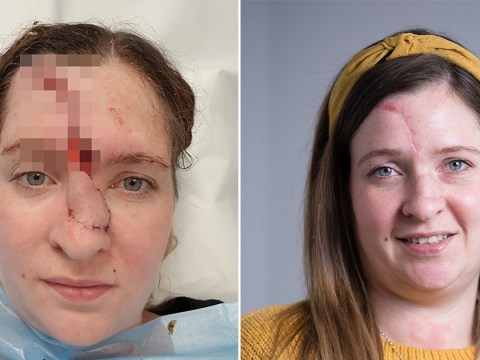 Woman's face sliced open after getting skin cancer despite avoiding the sun
