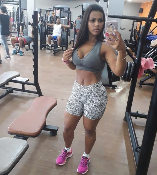Woman, 26, needs to have her rear reconstructed after she is left with horrific gaping wounds following cosmetic surgery in Brazil. Angela admitted she did not need to enlarge her bum ? FocusOn News