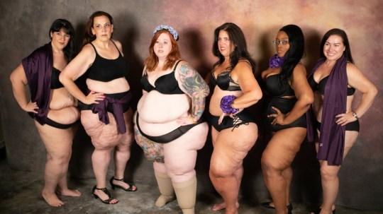 Séance photo de femmes atteintes de lipœdème