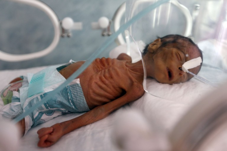 EDITORS NOTE: Graphic content / A malnourished newborn baby lies in an incubator at Al-Sabeen hospital in the Yemeni capital Sanaa on November 23, 2019. - The Yemeni conflict has killed tens of thousands of people, most of them civilians,and driven millions more to the brink of famine in what the United Nations calls the world's worst humanitarian crisis. (Photo by Mohammed HUWAIS / AFP) (Photo by MOHAMMED HUWAIS/AFP via Getty Images)