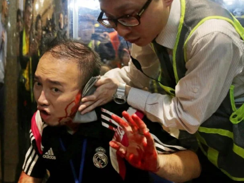 Knife attacker 'bites off' politician's ear during Hong Kong democracy protests