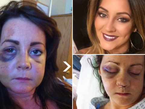 Woman's face needed rebuilding after boyfriend left her looking like a crash victim