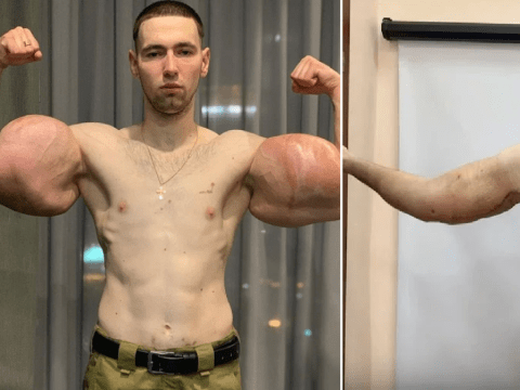 'Popeye' bodybuilder has 3lbs of dead muscle removed after injecting his biceps