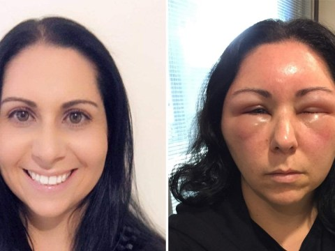Woman's face swells so much she can't open her eyes after she uses boxed hair dye
