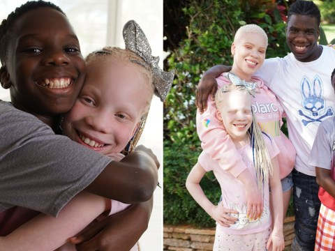Twins look completely different because one has albinism and the other doesn't