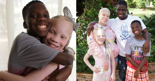 Twin siblings, one has albinism and not the other