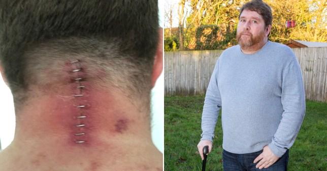 Stuart Clegg lost 80% of neck mobility after supermarket fridge door hit him like a guillotine