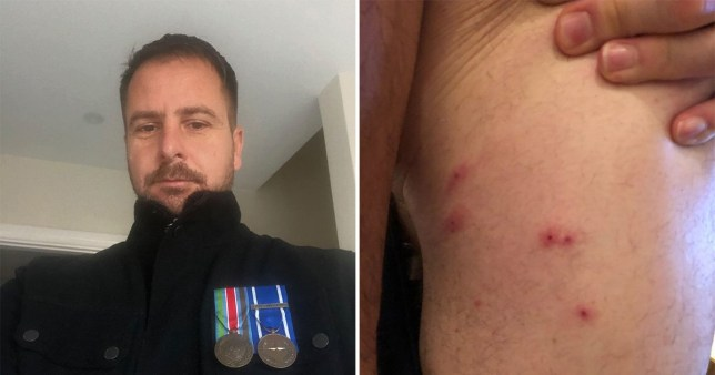 Caption: A furious army vet branded Premier Inn more \'squalid\' than warzones he\'s been to after being \'eaten alive by 100 bed bug bites\' - as the hotel giant admitted to an \'infestation\'.