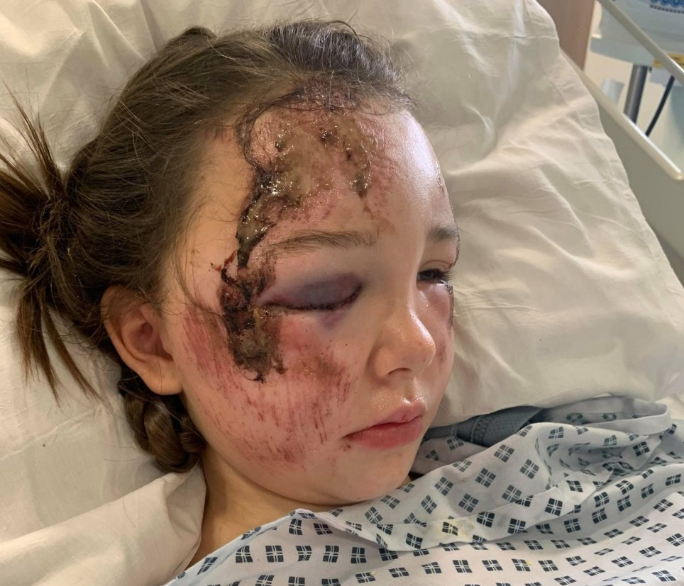 Shocking pictures show Lainey Matta, 11, in hospital after being hit by a bus while on her way to school in St Austell on the morning of December 2. See SWNS story SWPLinjuries. These shocking pictures show the catalogue of injuries suffered by an 11-year-old girl who was hit by a bus while walking to school. Lainey Matta, better known by her nickname Flump, was hit when she slipped off the curb into the path of the vehicle. She suffered a number of serious injuries, including fractures to her skull, ribs, collarbone and a number of cuts and grazes. Lainey was initially taken to Royal Cornwall Hospital after the incident in St Austell on the morning of December 2 before being transported up to Bristol Children?s Hospital via air ambulance.