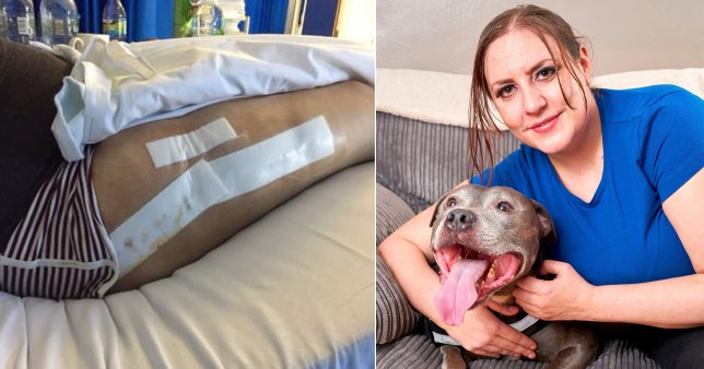 Dog sniffs out tumour the size of a rugby ball in his owners leg and saves her life