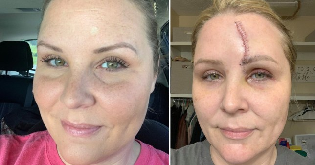 Carrie Searcy is sharing her story to warn people that no tan is worth skin cancer