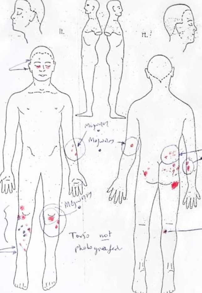 Gang rape victim diagram