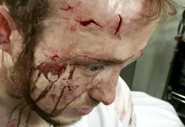 A man who sustained serious facial injuries after being assaulted in October has spoken out and is asking anyone who witnessed the incident to come forward. See SWNS story SWBRglass. Police were informed that 24-year-old Tim Unwin had been assaulted outside the Barn Theatre, Ingleside House on Beeches Road, Cirencester shortly after midnight on Sunday 6 October. It was reported that Tim was hit over the head with a Stein glass which led to him sustaining the serious facial injuries. Tim's attacker is believed to have been at an Oktoberfest event which was taking place in the area and it's believed that a number of people who were also attending may have witnessed what happened. The assault left Tim with a number of deep cuts on his forehead as well as wounds on his face and back.