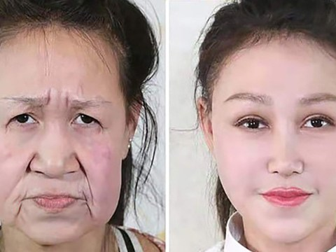 Girl, 15, who looked like she was 60 is given a new face