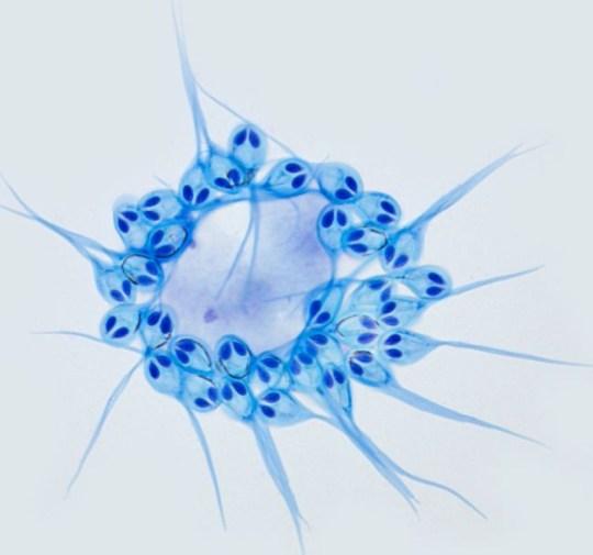 H. salminicola, oksijeni enerjiye dönüştürmek için mitokondri geninden yoksun