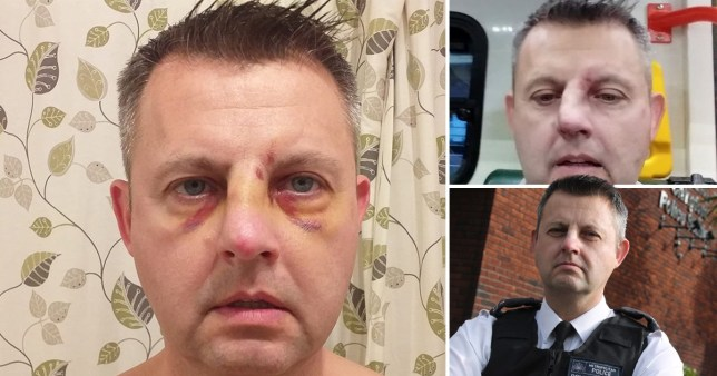 PC Darren Jenkins after he was assaulted in Leyton, East London,