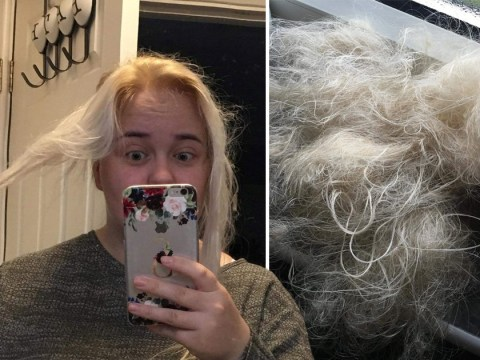 Mum says hair dye burned her hair off, leaving her hiding in her bathroom in shame