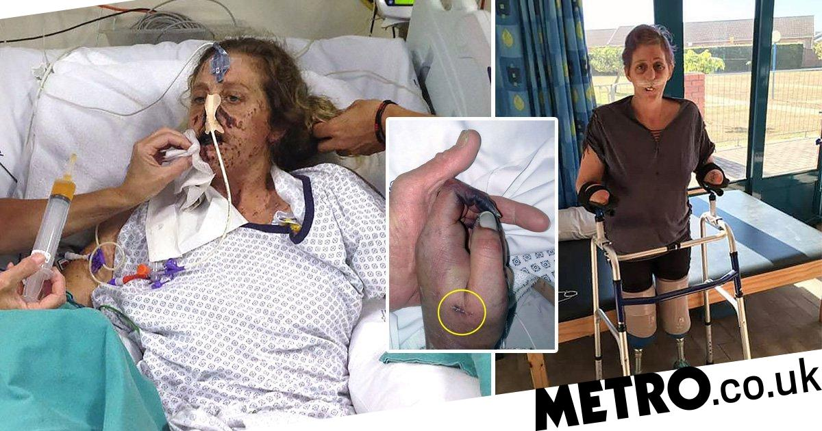 Woman loses both arms and legs after being attacked by mongoose
