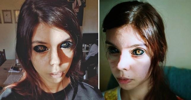 Woman goes blind after having eyeballs tattooed black