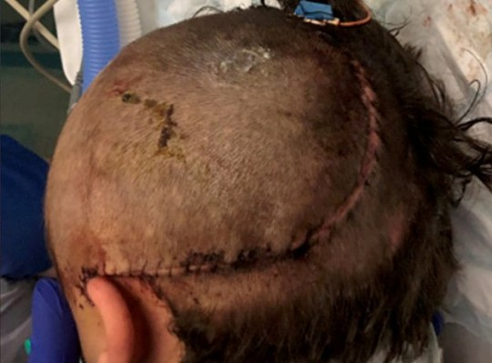 A cicatriz da vítima após a cirurgia.  Veja a história do SWNS SWMDbat, um jovem de 18 anos foi preso hoje por um ataque violento a um garoto que o deixou gravemente incapacitado.  Em 13 de novembro de 2018, fomos chamados a relatos de que um garoto de 16 anos sofreu um grave ferimento na cabeça depois de ser agredido no início da noite em Middleton-by-Wirksworth.  O adolescente, que agora tem 17 anos, permaneceu no hospital por nove meses e, embora esteja agora em casa, precisa de cuidados em tempo integral e tem uma lesão cerebral ao longo da vida.  John Callis-Woolsey, de Middleton-by-Wirksworth, havia se declarado culpado de causar danos corporais graves com intenção e hoje foi condenado a oito anos de prisão no Derby Crown Court.