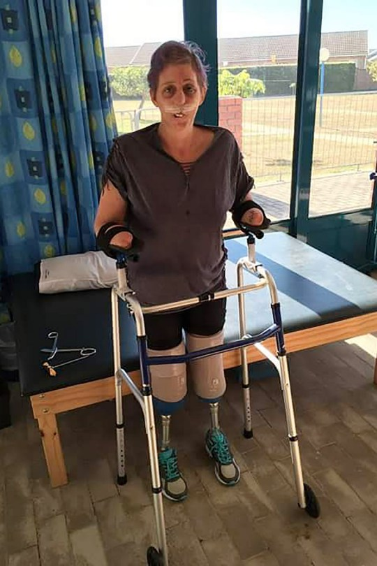 Pics by @shan.livinglife / Caters News - (PICTURED: Collect pic of Shaninlea Visser recovering in hospital after she was bitten by a mongoose which caused sepsis and forced her to have multiple limb amputations.) A mum who was forced to undergo multiple amputations - including both hands, feet, nose, and lips - just days after being bitten by a mongoose, says she feels lucky to still be alive. Quadruple amputee, Shaninlea Visser, 36, from KwaZulu-Natal, South Africa, contracted sepsis two days after she was bitten by a mongoose and was put in an induced coma for 11 days, while her family was told there is little chance she