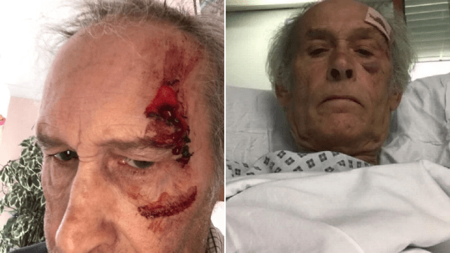 Pensioner managed to cycle nine miles with broken bones after hit and run