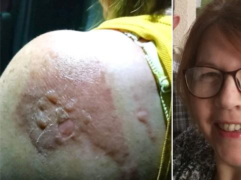 EasyJet passenger scalded 'when steward dropped hot noodles on her shoulder'