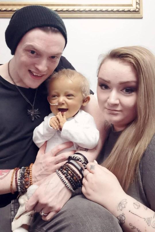 Kulit Bayi ini BerwarnaKuning Akibat Penyakit Langka, Malah Disamakan Minion