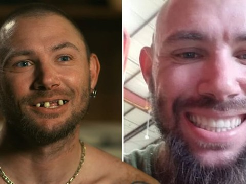 Tiger King Joe Exotic's ex-husband John Finlay shows off sparkling set of new teeth after filming Netflix hit