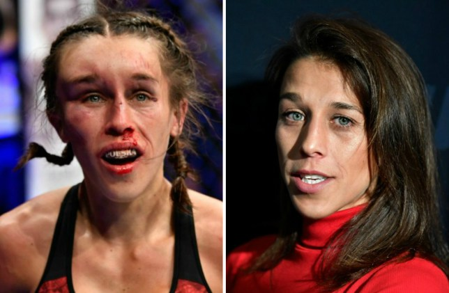 Joanna Jedrzejczyk left with gruesome hematoma after UFC war with Zhang Weili