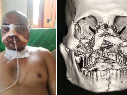 Farmer miraculously survives horrific injuries as his face is torn off by tractor plough